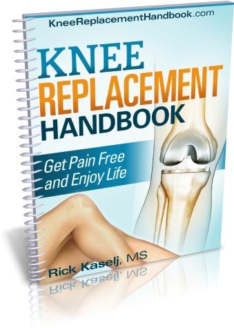 Knee Replacement Handbook